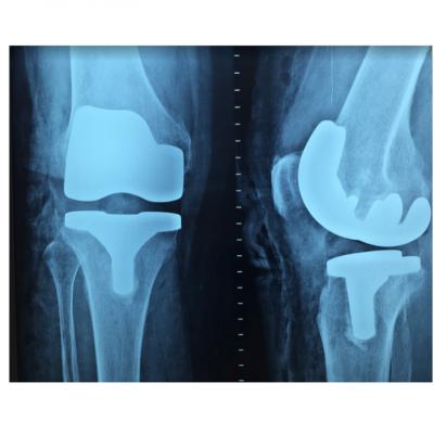 L'arthrose EN NATUROPATHIE